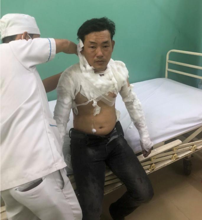 Hành động quái dị của kẻ cướp ngân hàng ở Bình Tân - Ảnh 1.