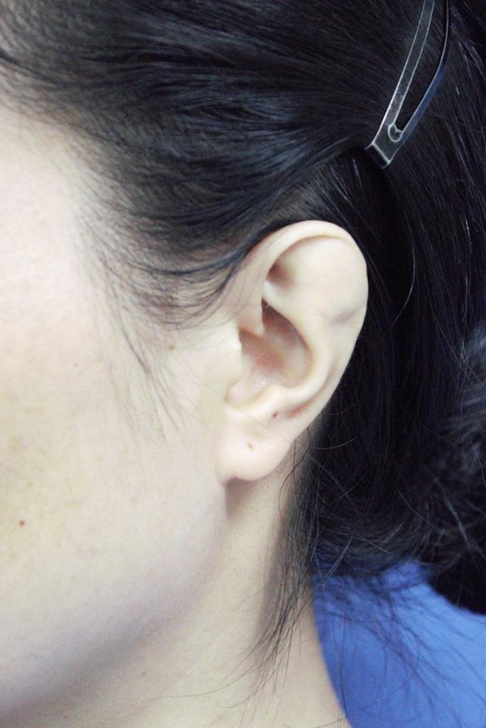 Phẫu thuật cho người phụ nữ 34 tuổi có vành tai khác thường - Ảnh 1.