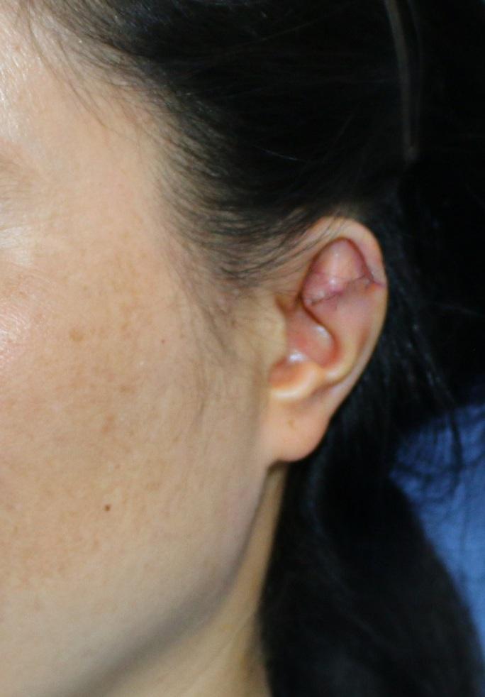Phẫu thuật cho người phụ nữ 34 tuổi có vành tai khác thường - Ảnh 2.