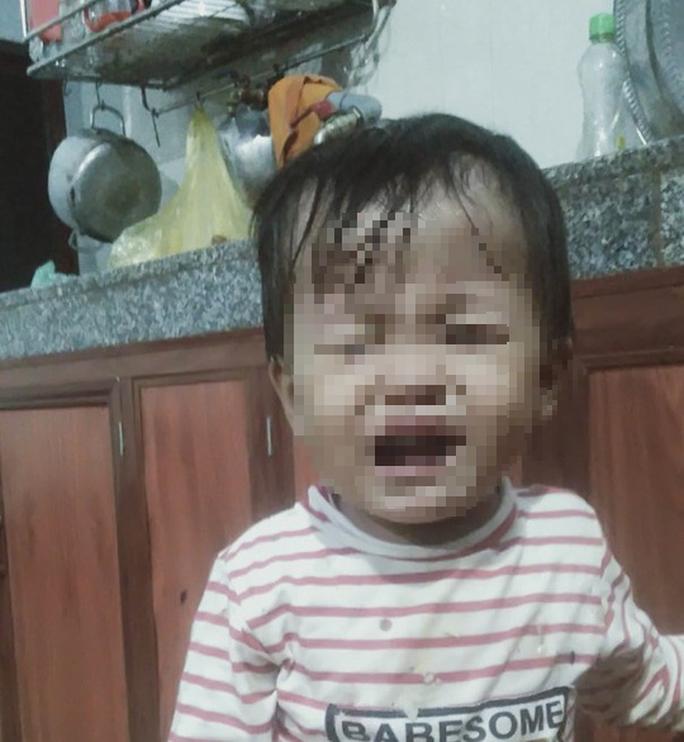 Người mẹ đau đớn cầu cứu chậm 1 ngày là mất hy vọng khi con thơ bị tim bẩm sinh - Ảnh 3.