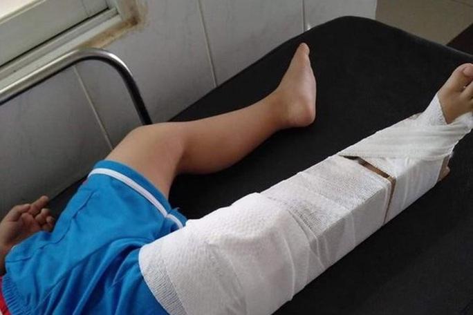 Chuẩn bị bó bột cho cháu bé 3 tuổi bị cô giáo mầm non làm gãy chân  - Ảnh 1.