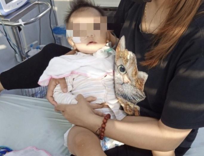 Bé gái 19 tháng tuổi liệt chi  vì bệnh tay chân miệng - Ảnh 1.