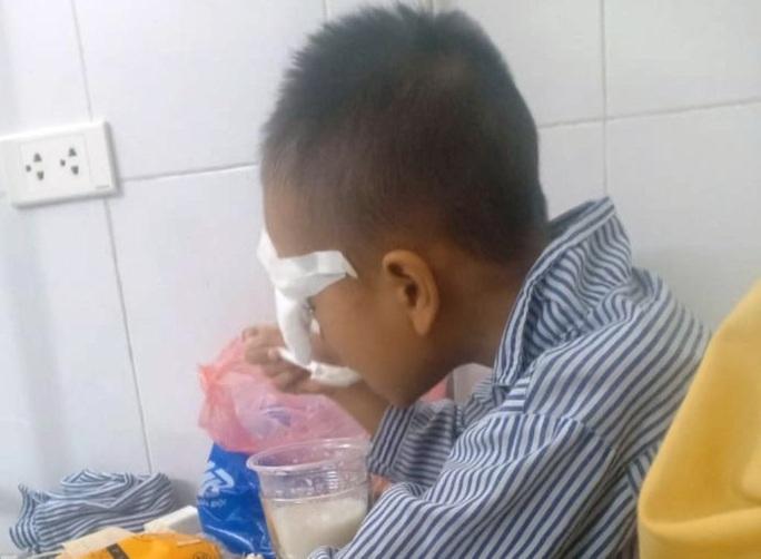 Nam sinh lớp 1 bị bạn ném bi sắt vào mắt gây tổn thương nặng - Ảnh 1.
