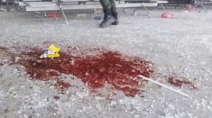 Vụ nổ ở sân bay Yemen gây thương vong cho khoảng 140 người - Ảnh 2.