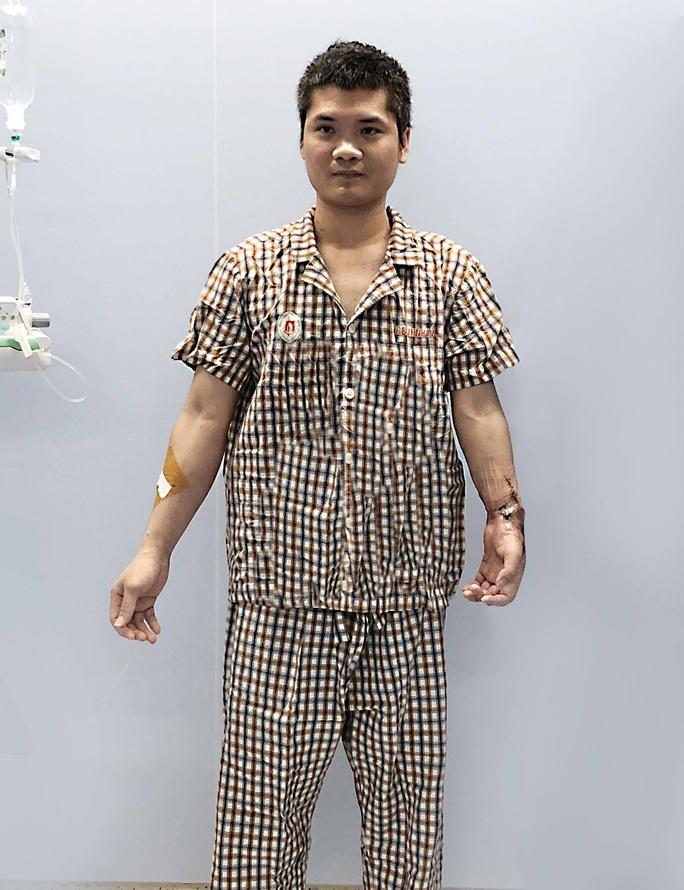 Việt Nam thực hiện thành công ca ghép chi thể đầu tiên trên thế giới từ người hiến sống - Ảnh 5.