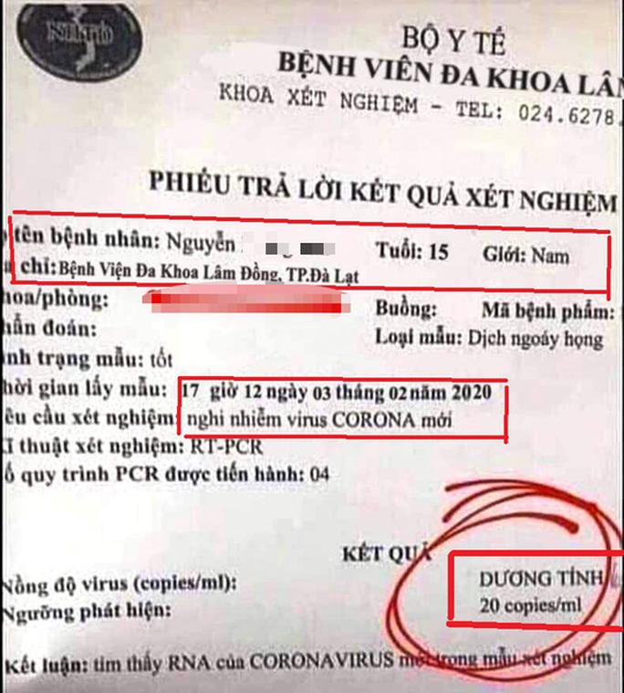 Hoang mang kết quả xét nghiệm dương tính với virus corona giả mạo ở Lâm Đồng - Ảnh 1.