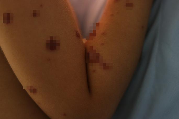 Bé gái 3 tuổi mắc chứng bệnh lạ khiến lở loét toàn bộ 2 môi - Ảnh 1.