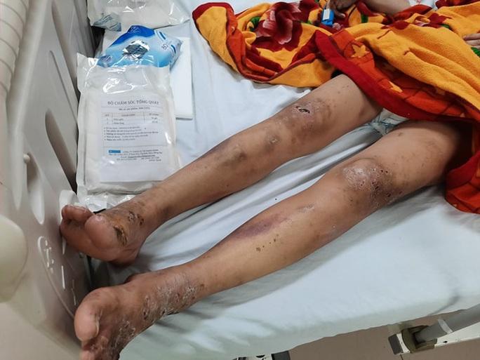 Cô gái trẻ bị gã chủ quán tra tấn dã man ở Biên Hòa - Đồng Nai - Ảnh 1.