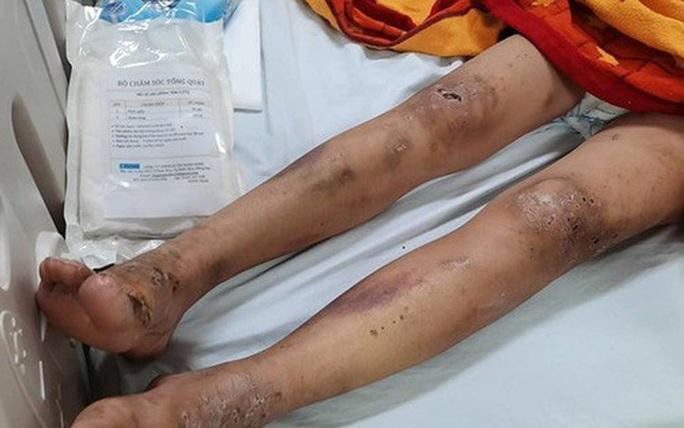 Phẫn nộ trước hình ảnh cô gái trẻ bị gã chủ tra tấn dã man ở TP Biên Hòa - Ảnh 2.