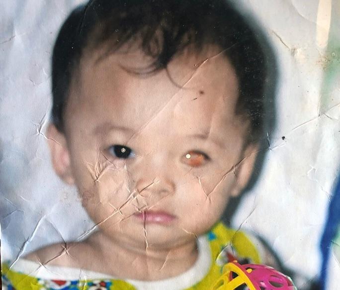 CLIP: Vợ chồng nghèo bất lực nhìn con trai 5 tuổi sắp mất luôn 2 mắt - Ảnh 4.