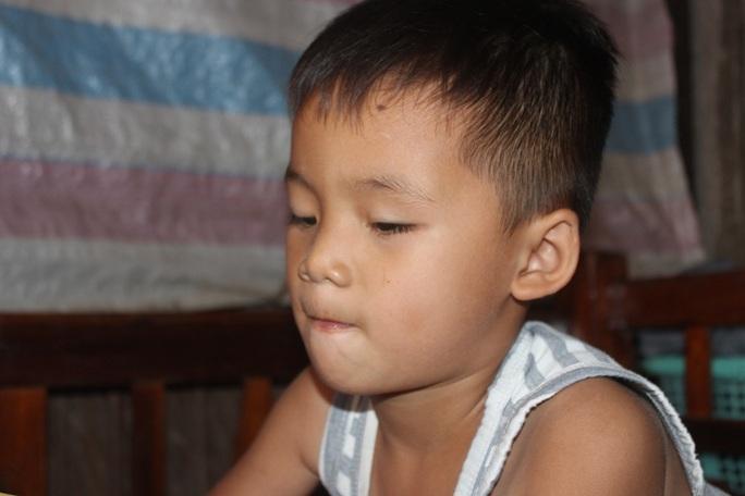 CLIP: Vợ chồng nghèo bất lực nhìn con trai 5 tuổi sắp mất luôn 2 mắt - Ảnh 11.