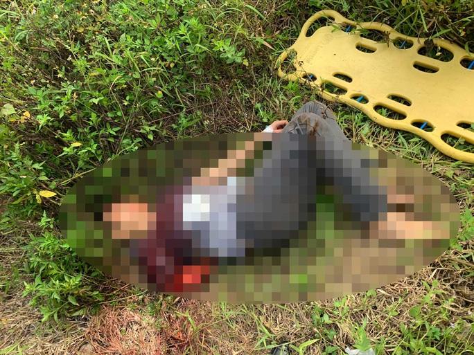 Đà Nẵng: Nam thanh niên bị tàu tông đứt lìa cánh tay - Ảnh 1.