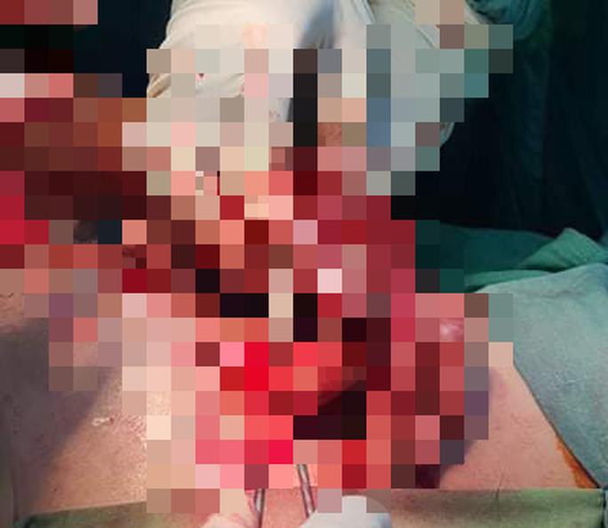 Chế tạo pháo, bé trai 15 tuổi bị dập nát 3 ngón tay - Ảnh 1.