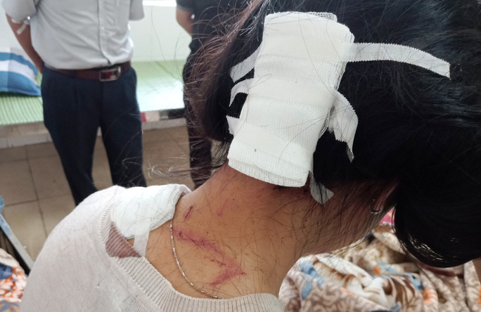 Chồng hờ 74 tuổi bất ngờ lao tới đâm trọng thương con gái riêng của vợ - Ảnh 2.