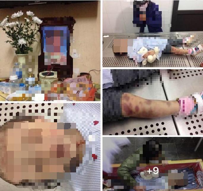 Vụ bé gái 4 tuổi tử vong: Chủ tịch Hà Nội Nguyễn Đức Chung chỉ đạo điều tra làm rõ - Ảnh 1.