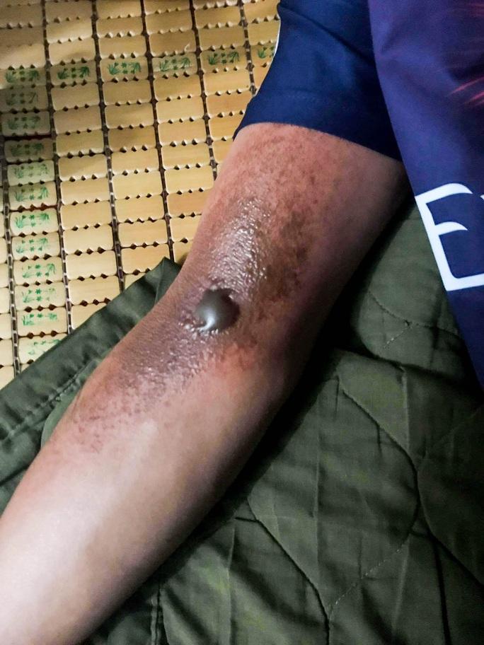 Xúc động chùm ảnh Cảnh cảnh sát chữa cháy bị bỏng, ăn, ngủ tại hiện trường - Ảnh 9.