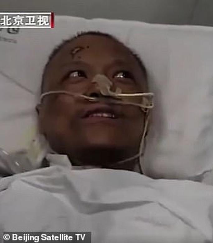 Covid-19: Trở về từ cửa tử, làn da của 2 bác sĩ Trung Quốc chuyển màu đen kịt - Ảnh 2.