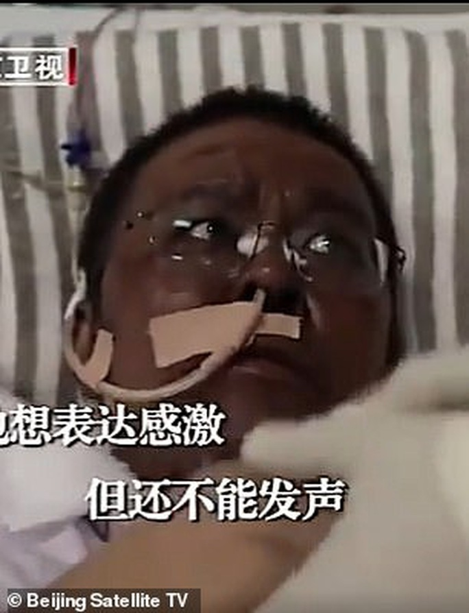 Covid-19: Trở về từ cửa tử, làn da của 2 bác sĩ Trung Quốc chuyển màu đen kịt - Ảnh 4.