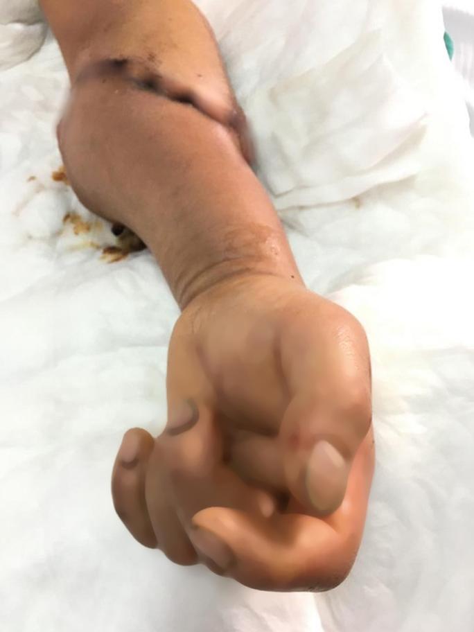 Phẫu thuật nối cẳng tay bị lưỡi dao cắt đứt phăng - Ảnh 2.
