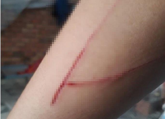 Bé gái nạn nhân vụ giao cấu ở Bình Chánh hoang tin bị tấn công - Ảnh 1.