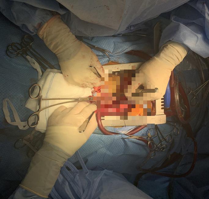 Nữ bệnh nhân suýt mất mạng do không tái khám sau nhiều năm thay van tim sinh học - Ảnh 1.