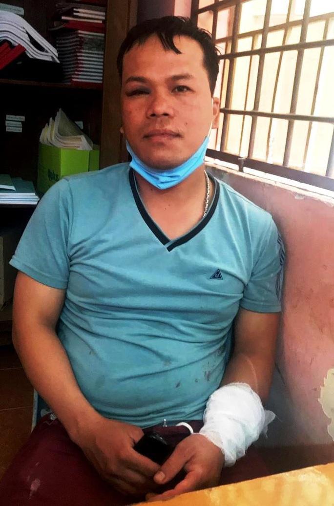 Bị đánh hội đồng, thanh niên vung dao đâm loạn xạ khiến 2 người trọng thương - Ảnh 1.