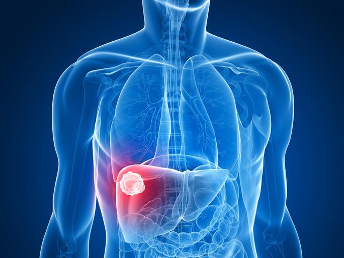 2 loại thuốc cũ bất ngờ cứu người ung thư gan ngoạn mục - Ảnh 1.