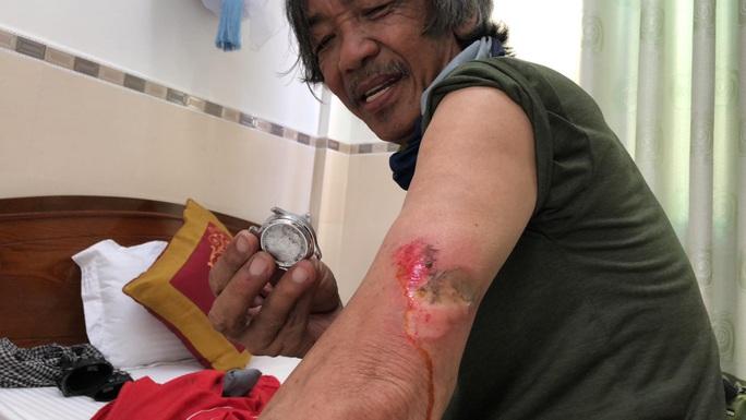 Nhà báo Dư Hải, Lê Nguyệt Minh và nhiều tay đua bị tai nạn giữa đèo - Ảnh 5.