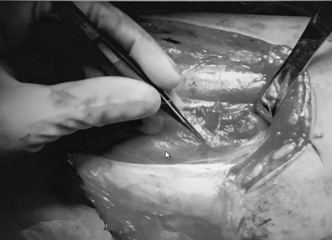 Thanh niên 26 tuổi bị cắt của quý vì ung thư dương vật - Ảnh 2.