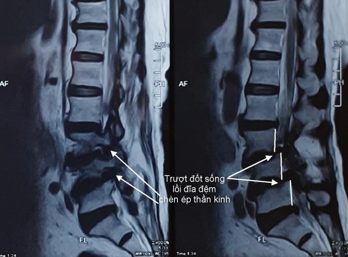 Tin vui từ kỹ thuật hiện đại chữa trị cho bệnh nhân thoát vị đĩa đệm - Ảnh 1.