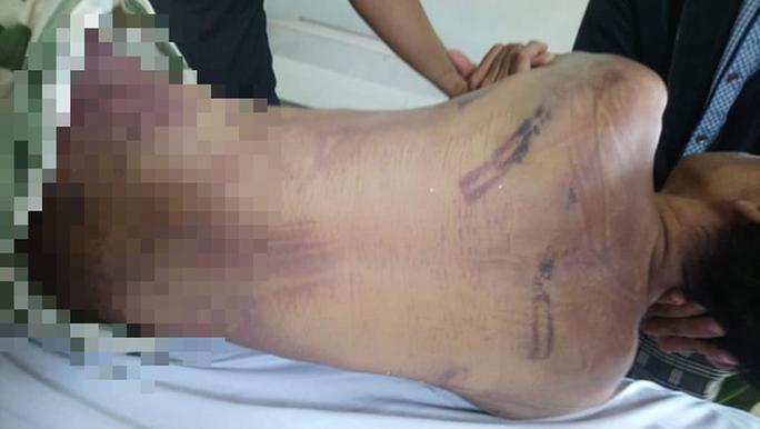 Phạm nhân tử vong trong trại giam với nhiều vết bầm tím - Ảnh 2.