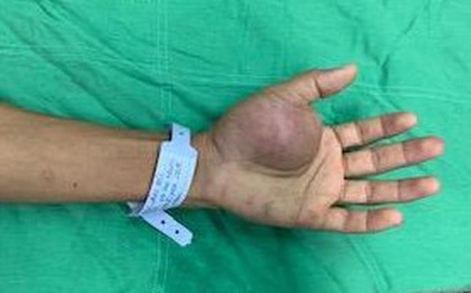 90 phút căng thẳng loại bỏ khối u đáng sợ ở lòng bàn tay bệnh nhân - Ảnh 1.