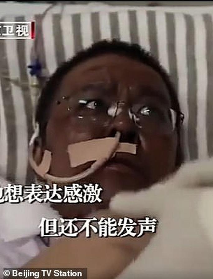 Bác sĩ Trung Quốc bị đổi màu da vì Covid-19 qua đời sau gần 5 tháng điều trị - Ảnh 2.