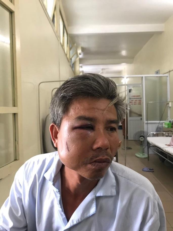 Nhân viên cây xanh bị đánh vì chụp hình băng rôn - Ảnh 1.