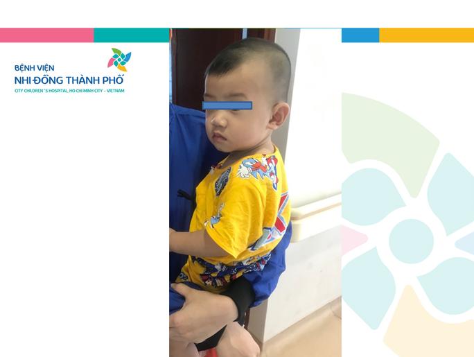 2 ngày nín thở lấy mảnh gương vỡ khỏi bụng bé trai 10 tháng tuổi - Ảnh 1.