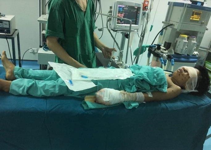 Thiếu niên bị nát tay, vỡ nhãn cầu cả 2 mắt sau tiếng nổ lớn - Ảnh 1.