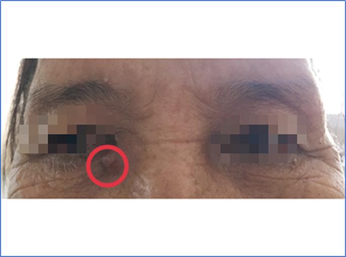 Bác sĩ đưa ra cảnh báo khi thấy khối u thịt nhỏ dưới vùng mắt - Ảnh 1.