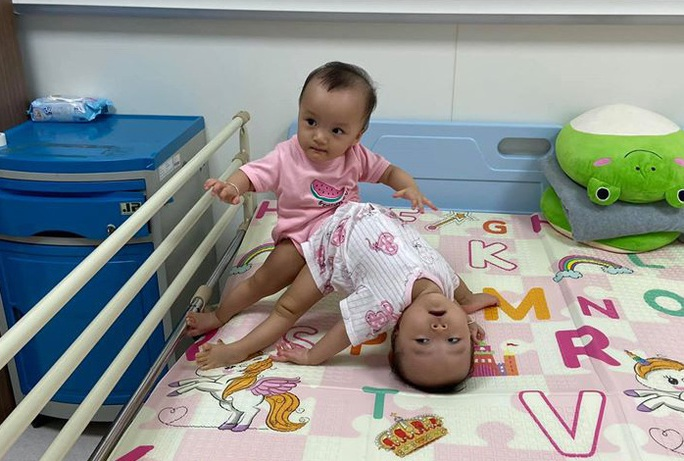 Cận cảnh 2 bé gái song sinh dính nhau: Từ phút ra đời đến ca mổ tách lịch sử - Ảnh 2.