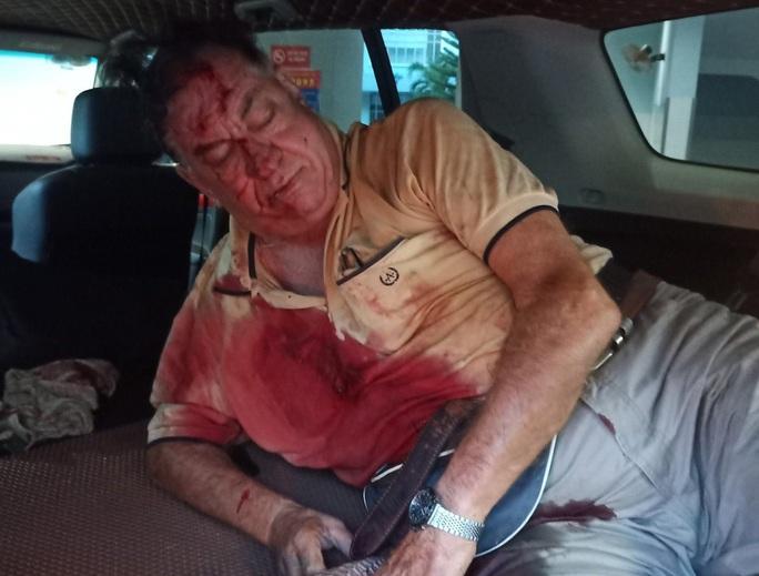 Sau hành động chặn xe đi ngược chiều, ông tây bất ngờ bị tai nạn - Ảnh 1.