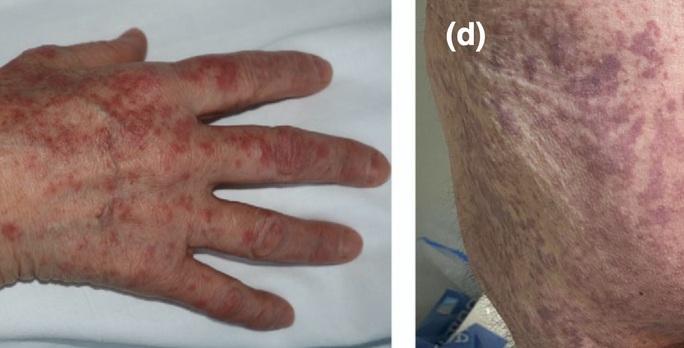 Bác sĩ chỉ 5 dấu hiệu điển hình trên da người mắc Covid-19 - Ảnh 2.
