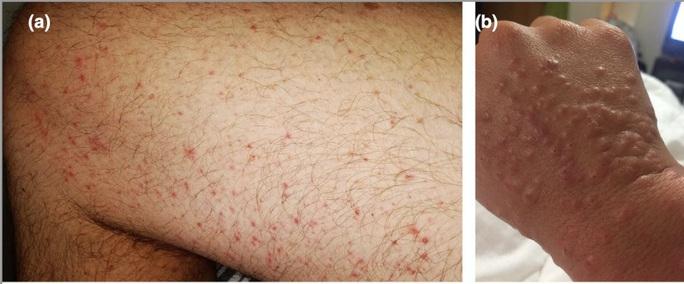 Bác sĩ chỉ 5 dấu hiệu điển hình trên da người mắc Covid-19 - Ảnh 1.