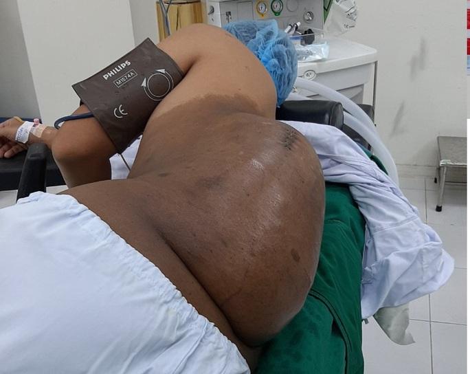 Lúc đầu bằng hạt mít, khối u bất ngờ nặng hơn 4kg trên lưng nam thanh niên - Ảnh 1.