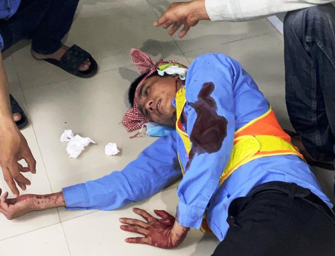 Bắt tạm giam 2 đối tượng đánh trọng thương 2 nhân viên trạm thu phí BOT Ninh Xuân - Ảnh 2.