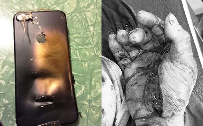 Quảng Bình: Điện thoại bị phát nổ khi vừa dùng vừa sạc pin, thanh niên bị cháy bỏng toàn thân - Ảnh 1.