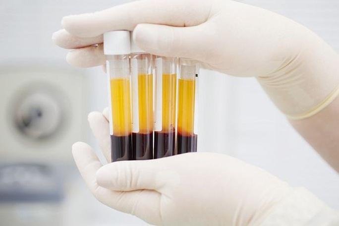 1 bác sĩ và 4 người khỏi Covid-19 tình nguyện hiến huyết tương điều trị bệnh nhân nặng - Ảnh 2.