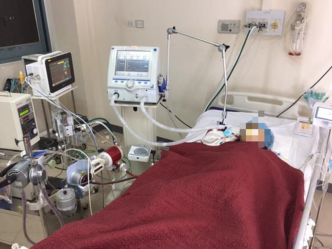 Bệnh nhân 418 âm tính SASR-CoV-2 lần 1 nhưng đang nguy kịch - Ảnh 1.