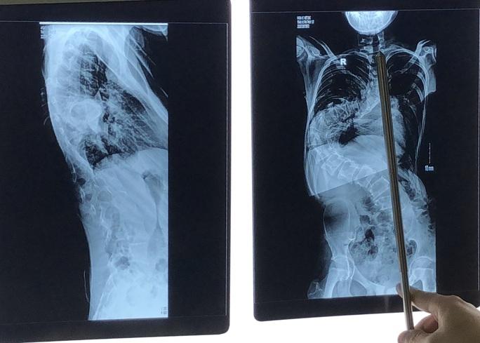 Thêm gần 10 cm chiều cao sau phẫu thuật cong vẹo cột sống - Ảnh 2.