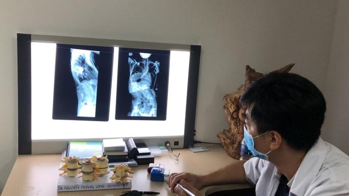 Thêm gần 10 cm chiều cao sau phẫu thuật cong vẹo cột sống - Ảnh 1.