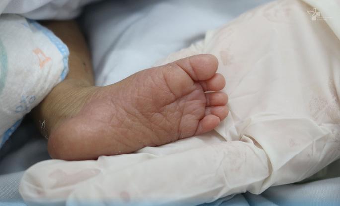 Thương lắm hình ảnh bé trai bị bỏ rơi bấu tay bác sĩ tìm hơi ấm sinh tồn - Ảnh 2.