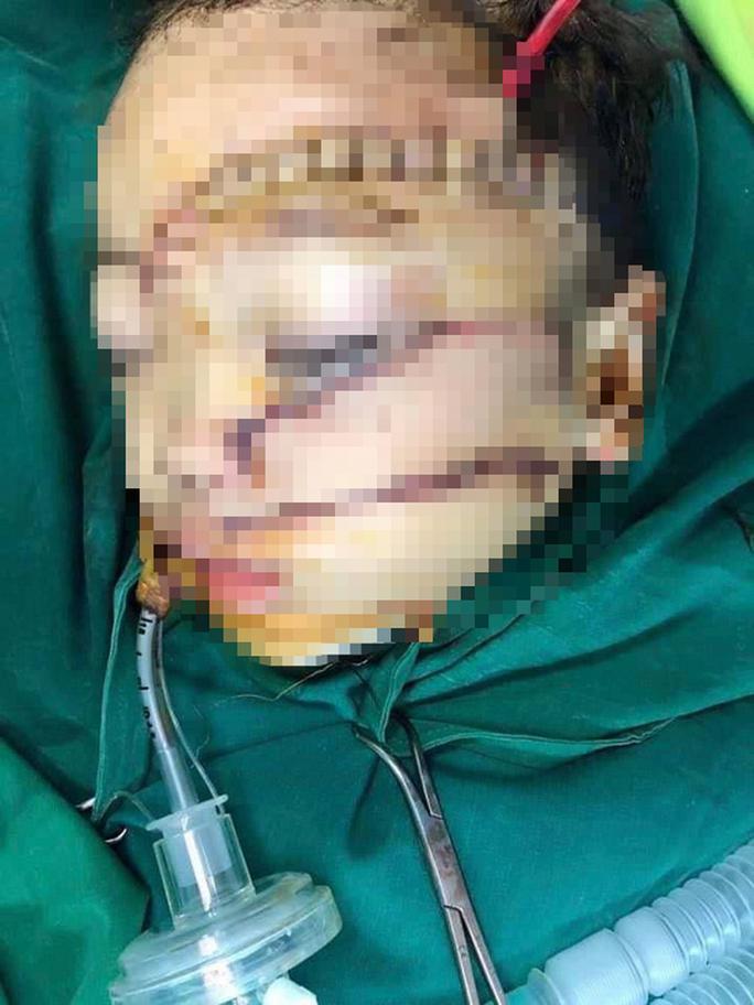 Bệnh viện bật báo động đỏ cứu cháu bé 5 tuổi bị cha chém nát mặt - Ảnh 1.